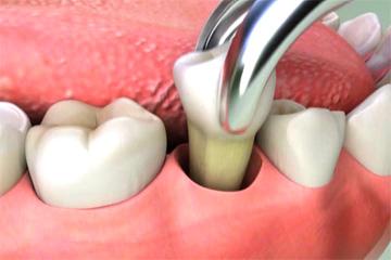 extractii_dentare